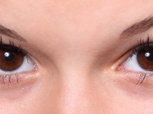 Blepharoplasty Eye Surgery NYC