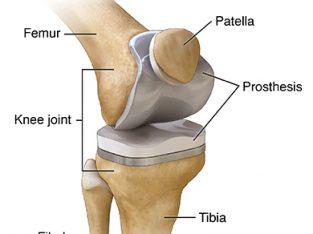 Total Knee Replacement Surgeon in Delhi