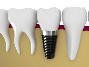 Dental Implants – A Permanent Solution For Missing Teeth | Lifestyle Dental
