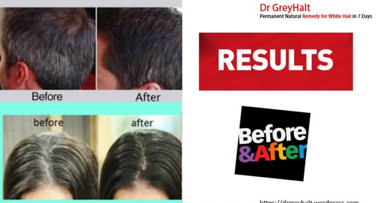 Dr GreyHalt Advantages for Grey Hair Treatment To Make White Hair Black