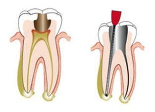 Teeth Root Canal Treatment In Sydney | Expert Endodontics
