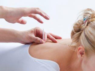 Best Acupuncture Treatment By City Acupuncture