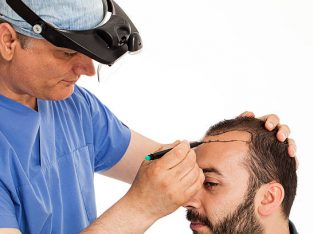 Best Hair Transplant Clinic in South Delhi