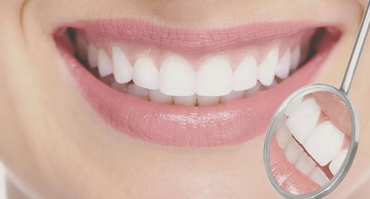 Earlsfield Dentist – Dove Dental & Wellbeing Spa
