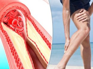 Leg Cramps/Peripheral Artery +1 678-580-1149