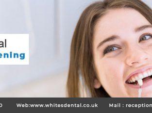 Teeth Whitening At Whites Dental London