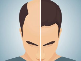 Affordable Hair Transplant Clinic in London