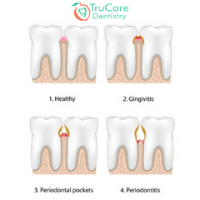 Periodontal treatment in Roswell GA
