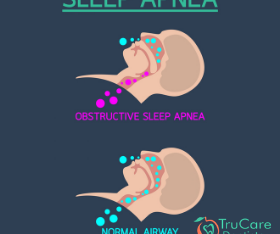Sleep apnea treatment in Roswell GA