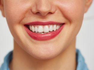 Cosmetic Dentist Newcastle NSW
