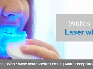 Laser Teeth Whitening Near Me
