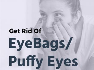 Remove bags under the eyes in under 5 minutes