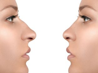Best Rhinoplasty (Nose Reshaping) Clinic in Hyderabad