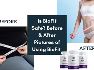 Is BioFit Safe? Before & After Pictures of Using BioFit