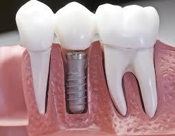 Dentist in Weybridge