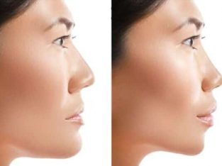 Double Jaw Surgery by Dr. Richard Rolle Jr.