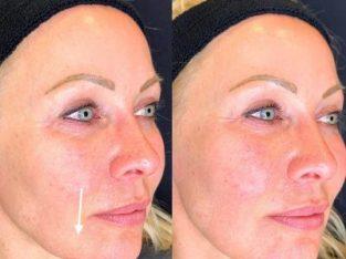 Dermal Fillers in London | Botox and fillers | Restore & Plump Skin