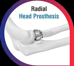 Orthopedic Implants Manufacturers France